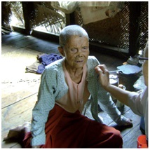 Empowering and helping people                                        with leprosy in Myanmar